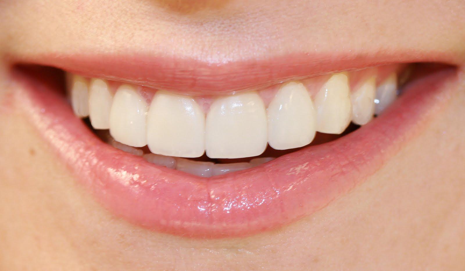 Trake za izbeljivanje zuba u apotekama